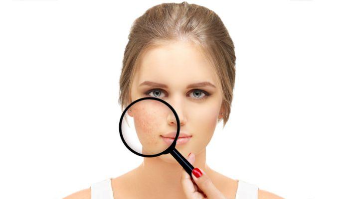 Aknenarben-Beseitigung