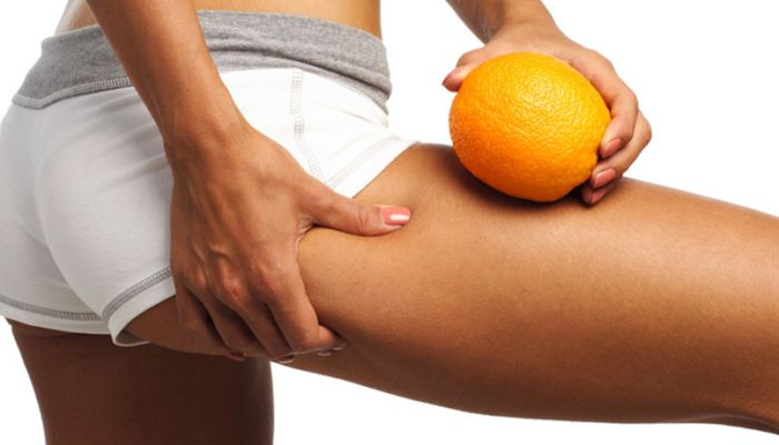 Cellulite-Therapie