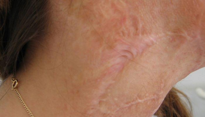 Hautkorrekturen / Narben